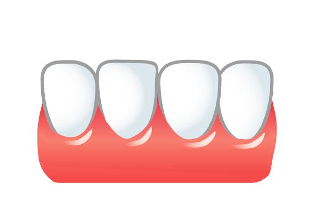印象の大半を決める歯並び