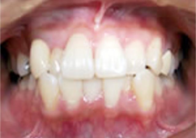 八重歯になる原因とは